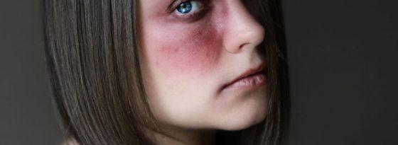 رفع کبودی چشم و صورت