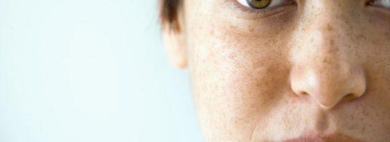 چگونه لک های صورت خود را هنگام آرایش مخفی کنیم؟