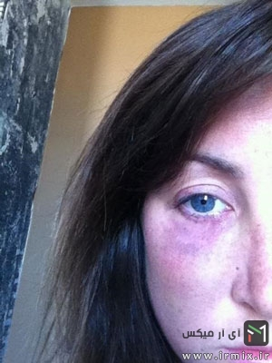 رفع کبودی صورت و چشم