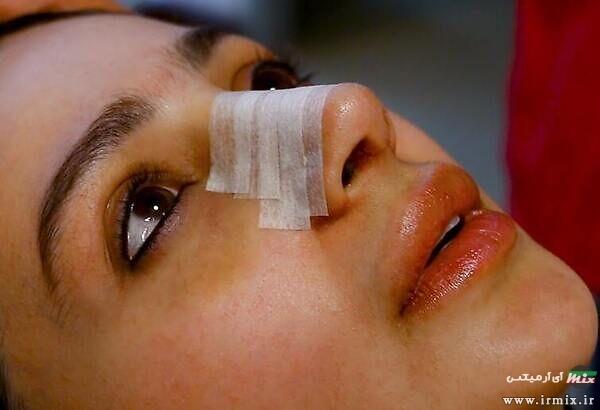 آموزش تصویری چسب زدن بینی بعد از عمل