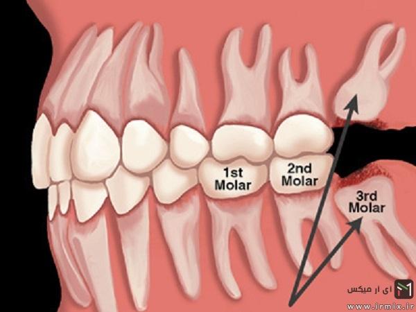 کشیدن دندان عقل درد دارد