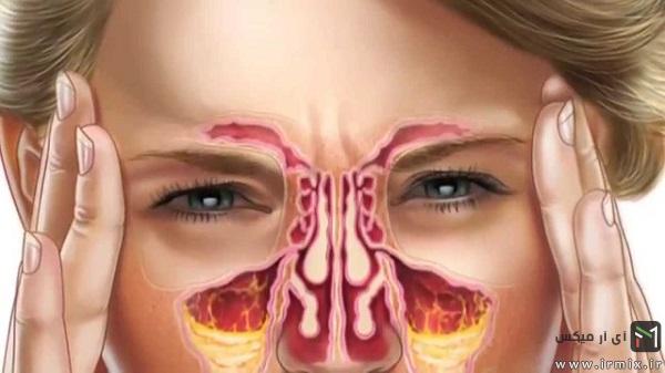 شستشوی بینی با محلول نمکی