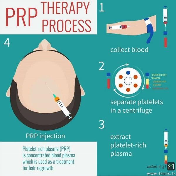 فرآیند درمانی پی آر پی مو