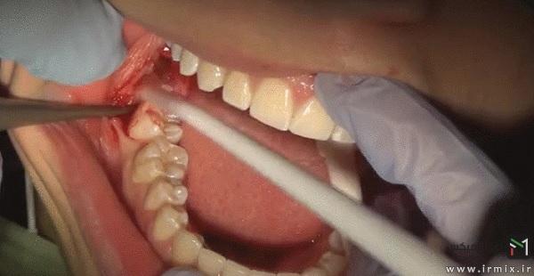 آیا دندان عقل را باید کشید؟