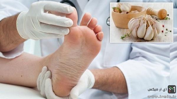 درمان قارچ ناخن با سیر
