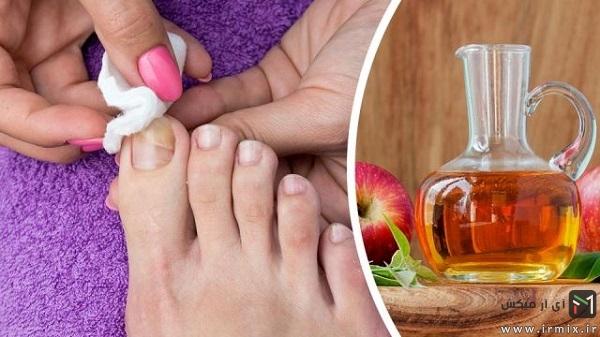 استفاده از سرکه برای درمان قارچ ناخن پا