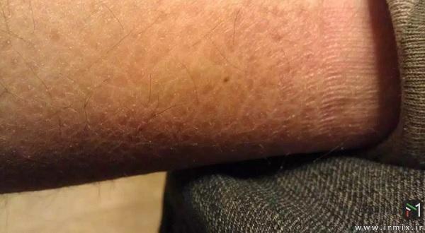 بیماری ایکتیوز ولگاریس