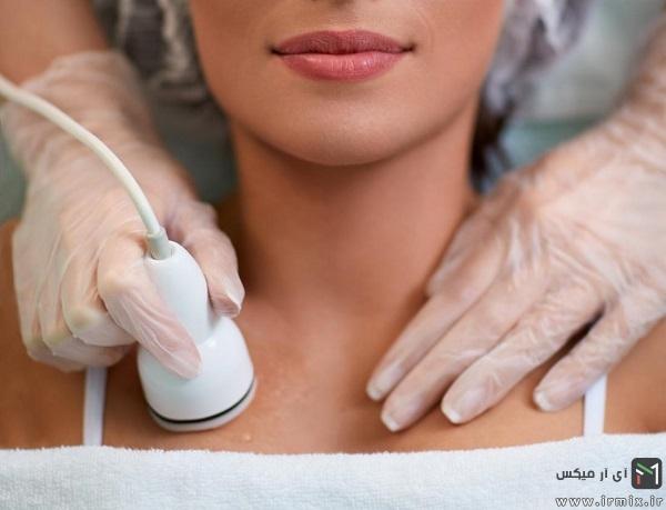 درمان طبیعی و قطعی برای از بین بردن خط های سفید بدن