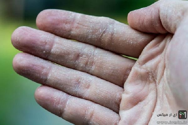 درمان پوسته پوسته شدن پوست