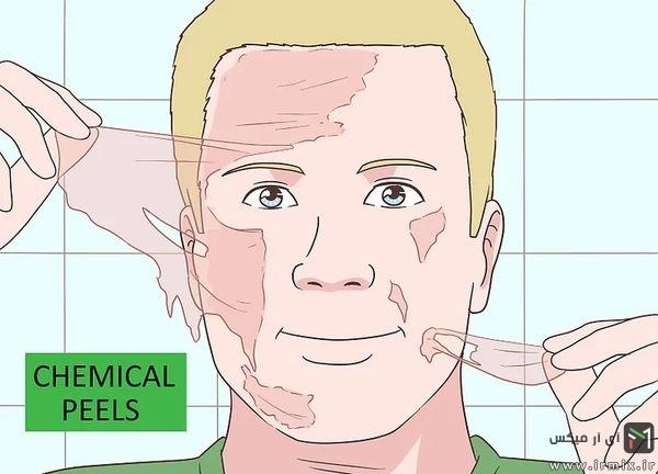 پیلینگ شیمیایی پوست