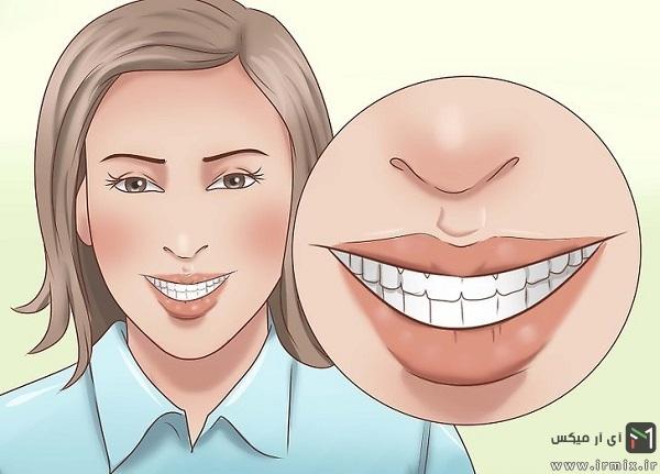 زیبا خندیدن و نحوه صحیح لبخند زدن