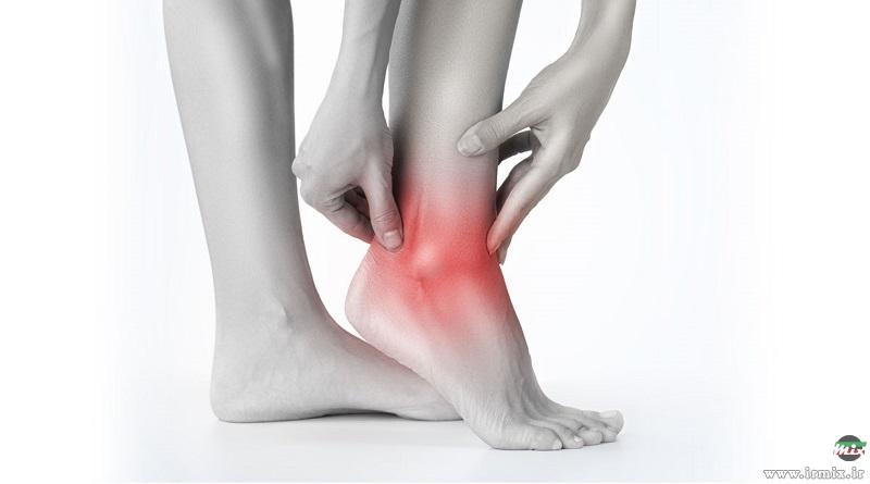 آموزش روش سنتی درمان پیچ خوردگی قوزک و روی پا در منزل