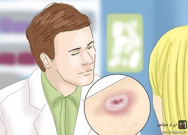 علائم سرطان پوست