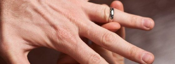 Best Ways to Remove a Stuck Ring From Finger