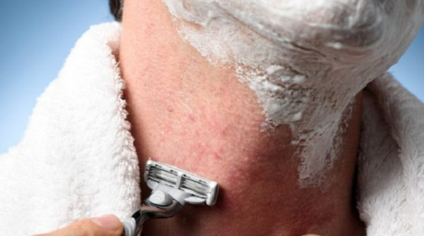 Best ways to treat and prevent razor burn