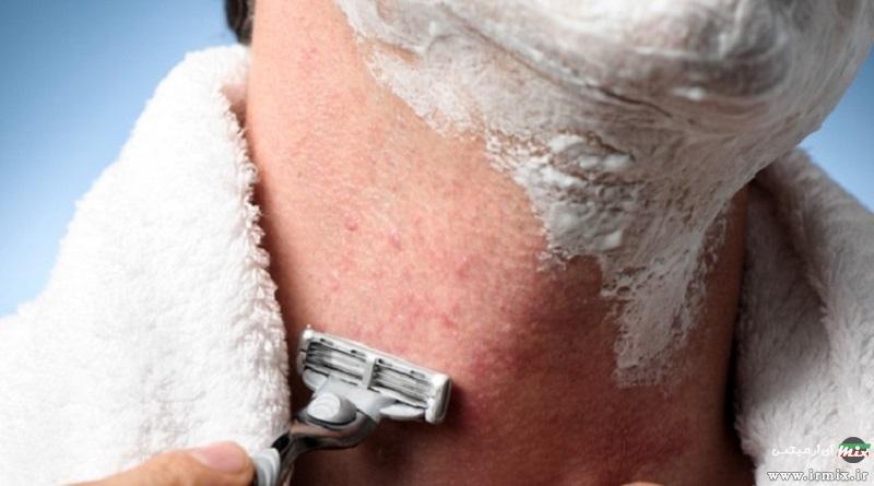 آموزش جلوگیری از خارش ، سوزش و جوش بعد از اصلاح با تیغ ژیلت