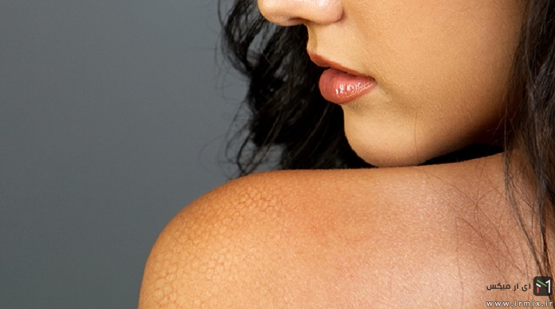 Conditions that cause scaling skin
