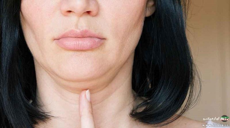 آموزش ۱۰ روش ساده برای درمان افتادگی پوست با طب سنتی