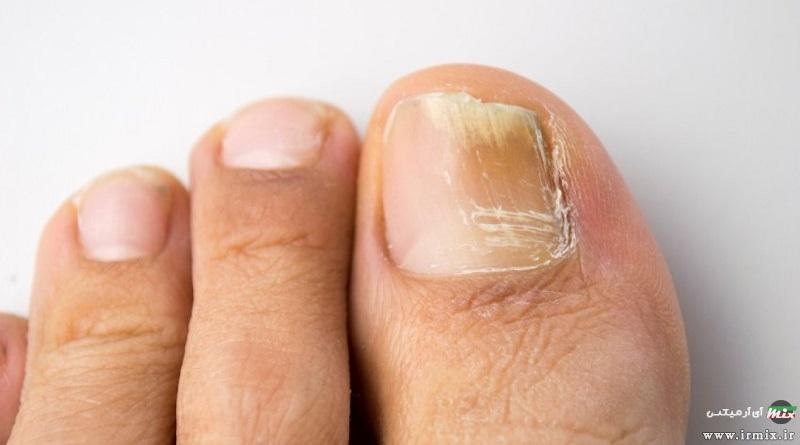 دلیل زرد شدن ناخن ها چیست؟ چگونه زردی ناخن پا و دست را درمان کنیم؟