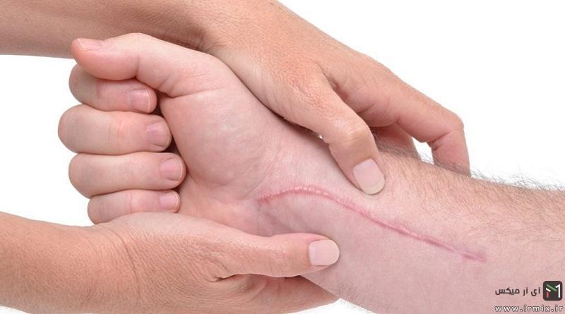 آموزش از بین بردن جای زخم کهنه از روی دست، پا و صورت
