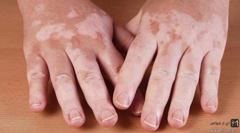 معرفی انواع علت به وجود آمدن لکه های سفید روی پوست دست و صورت با تصویر