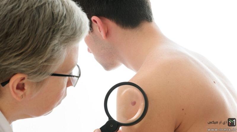 نشانه ها و علائم سرطان پوست در بزرگسالان، کودکان و روشهای درمان آن