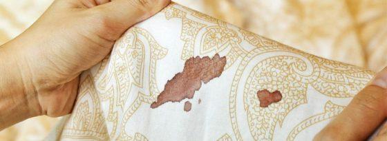 از بین بردن لکه خون روی لباس، مبل، تشک، پارچه و..