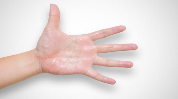 چه کنیم دستانمان عرق نکند؟