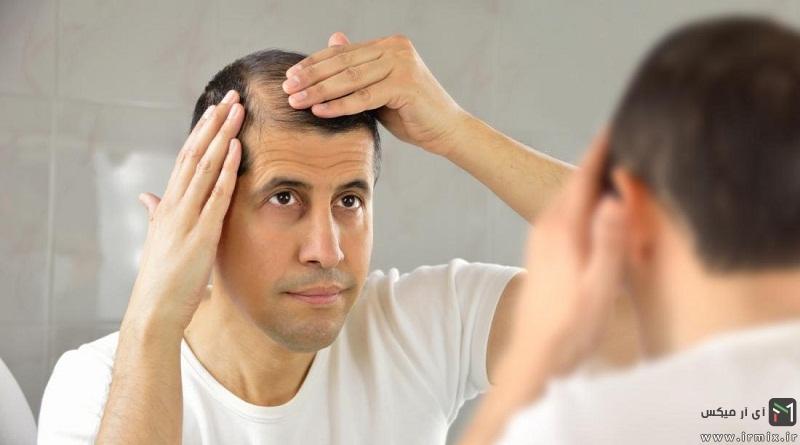 روش درمان طبیعی ریزش مو مردان با شامپو، حنا، آلوئه ورا ،چای سبز و .. در خانه