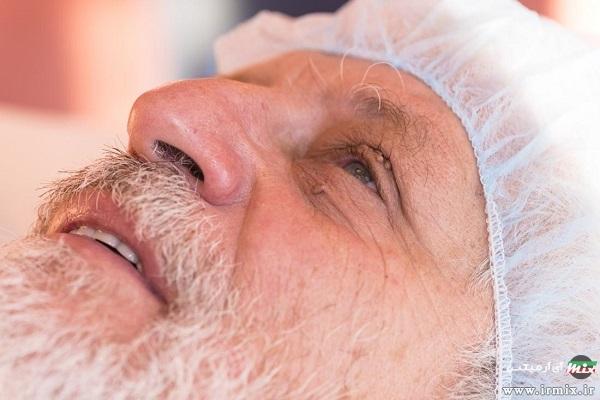 درمان منگوله پوستی مقعدی