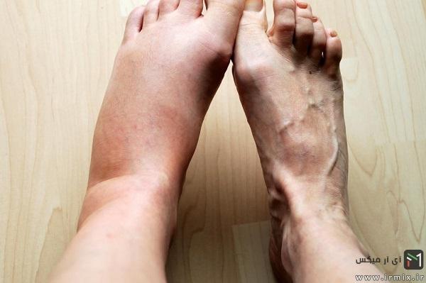 ضعف پا در اوایل بارداری