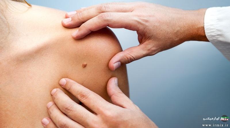 آموزش روش های طبیعی درمان منگوله پوستی در خانه