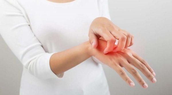خارش بدن نشانه چيست؟ معرفی درمان های خانگی و گیاهی برای خارش پوست